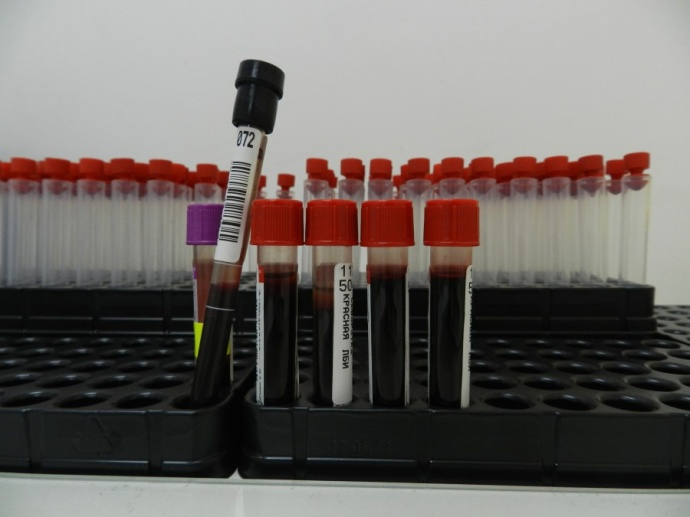 ВЛиде возбудили сразу два уголовных дела зараспространение ВИЧ